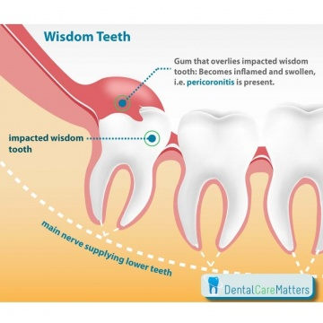 Wisdom Teeth Complications Ealing | Extractions Acton | Hanwell