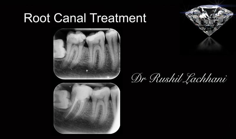 Bad Breath Treatment >> Gallery Ealing | Dentist Acton | Hanwell